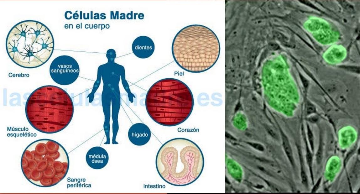 Resultado de imagen de Expertos analizan las promesas y riesgos de las terapias con células madre